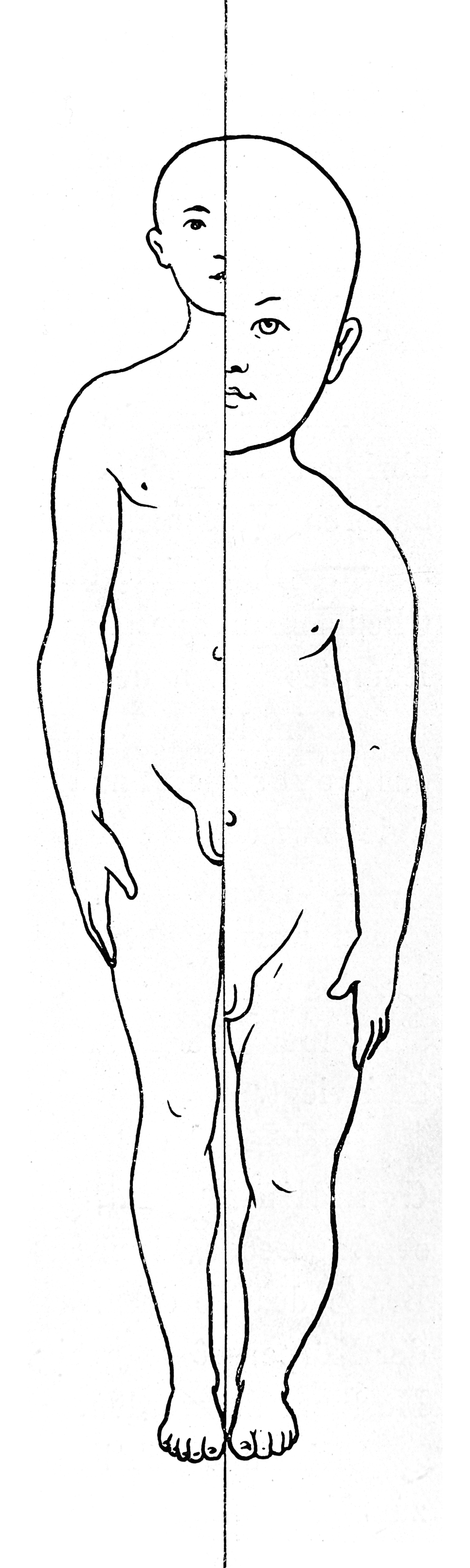 variation of proportion with age