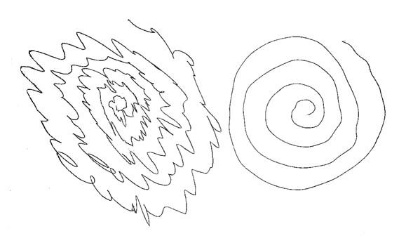 spiral drawing essential tremor jpg