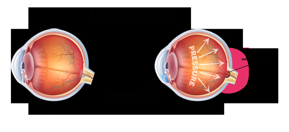 how will my physician treat my glaucoma glaucoma treatment includes medicated eye drops