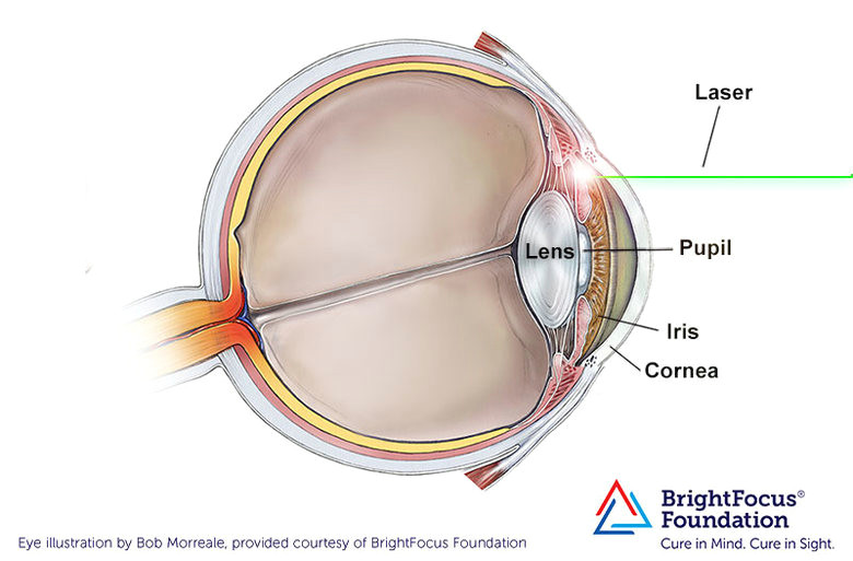 a diagram of the eye showing the process of peripheral laser iridotomy