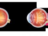 Drawing Of Eye Drops Glaucoma Bva Advanced Eye Care