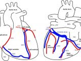 Heart Diagram Drawing Easy Anatomy Of the Heart and Major Coronary Vessels In Anterior